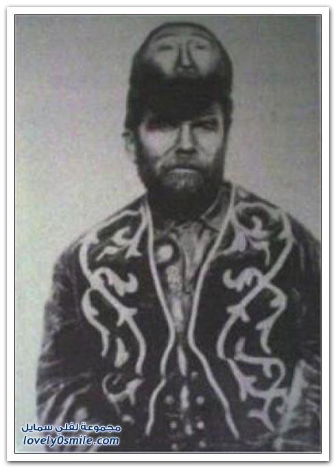 Паскуал Пинон - човекът с две глави от Мексико